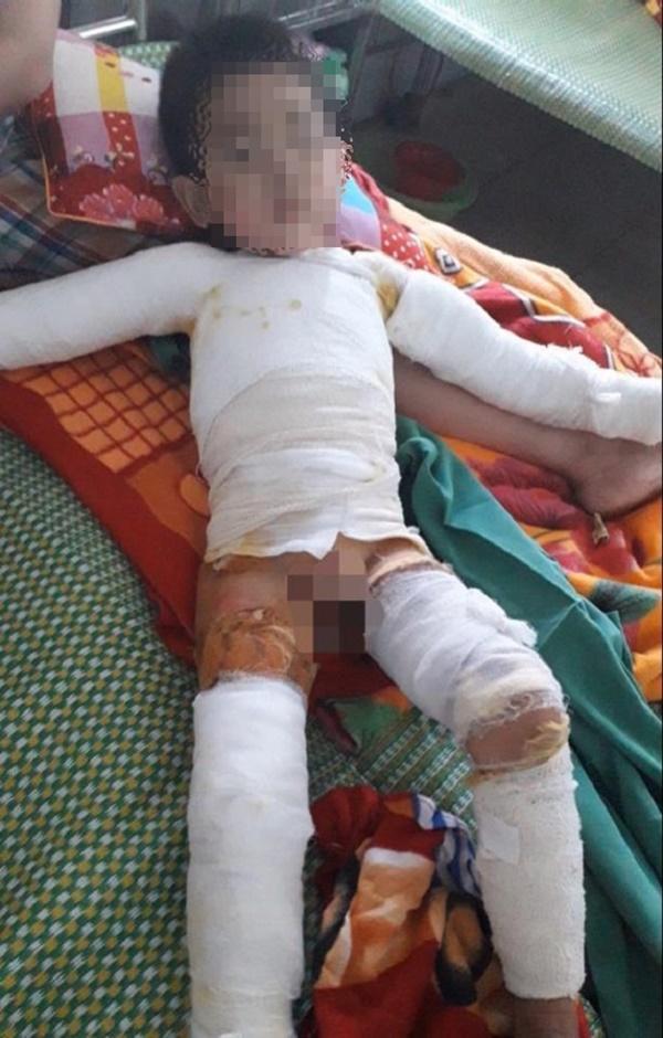 Bé trai 5 tuổi bỏng nặng toàn thân do nghịch bật lửa-1