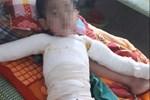 Hà Nội: Bé gái 2 tháng tuổi bị bỏng nghiêm trọng do người nhà nhầm axit là vitamin D3-2