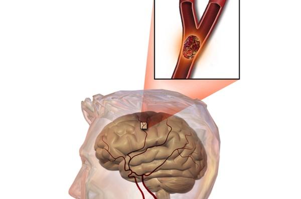 Bất kể nam hay nữ, trên 45 tuổi hãy tránh xa 3 loại thực phẩm, không làm 2 việc để ngừa nhồi máu não và giúp sống thọ-1