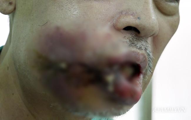 Nặn mụn ở miệng, người đàn ông không ăn được và biến dạng miệng nặng nề-1