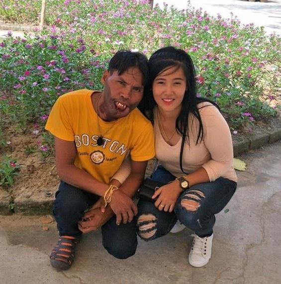 Cô gái lấy chàng trai dị tật 2 năm trước đã có chồng mới-1