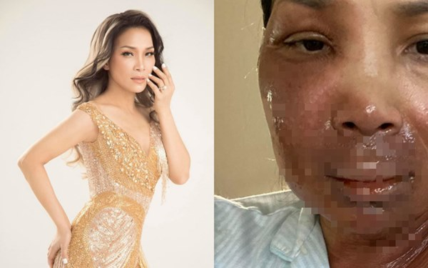 Ca sĩ Hồng Ngọc bất ngờ công khai ảnh bị bỏng 2/3 gương mặt-2