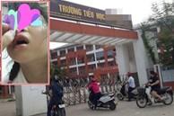 Vụ phụ huynh ở Hà Nội tố con gái bị đánh véo đến dập môi tụ máu, cô giáo giải thích 'Con tự cạy vảy ở môi'