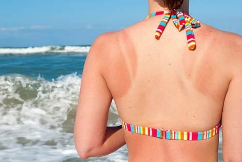 Áp dụng 5 cách chăm sóc da bị cháy nắng đơn giản giúp da lên tông nhanh chóng-1