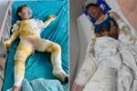 Vụ cháy phòng ngủ lúc nửa đêm, cả gia đình bỏng nặng: Người chồng đã tử vong, vợ và 2 con thơ nguy kịch