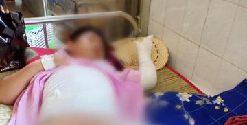 Một nhóm người ném bom xăng rồi ngăn không cho người dân chữa cháy, hai đứa trẻ bị bỏng nặng-3