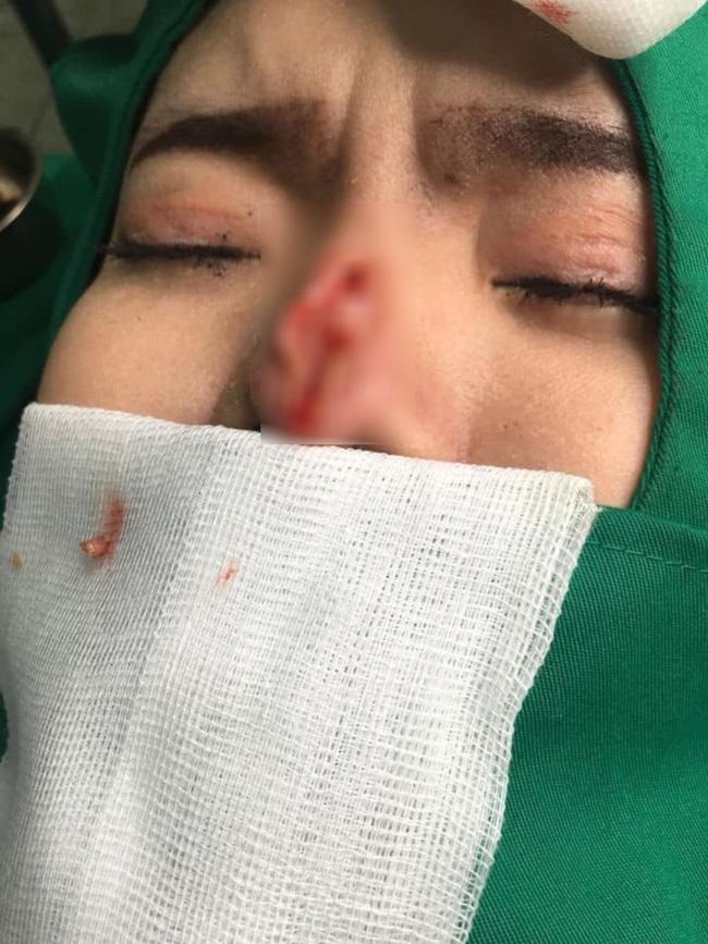 Hàng loạt biến chứng đáng sợ khi nâng mũi, nhìn thôi cũng thấy đau rụng rời: Chị em muốn can thiệp dao kéo cần rút kinh nghiệm ngay!-3