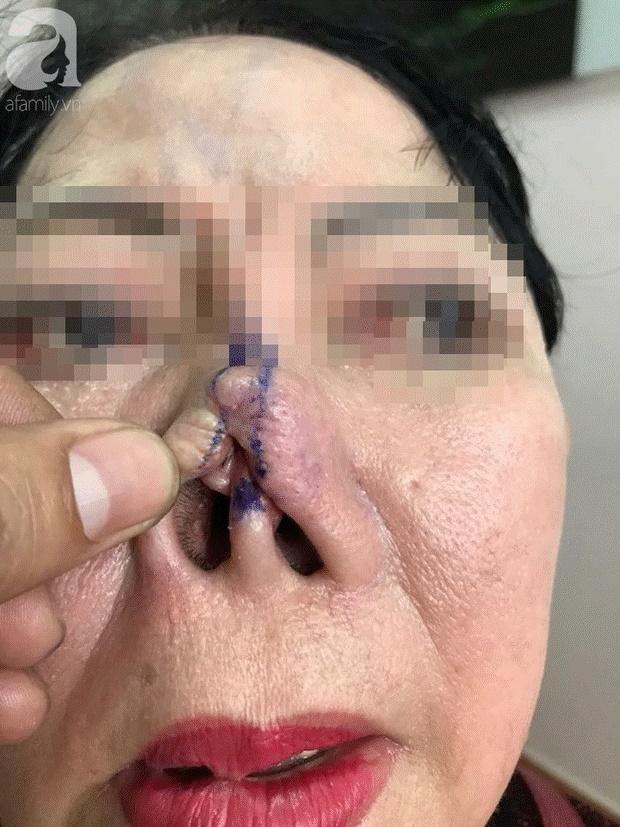 Hàng loạt biến chứng đáng sợ khi nâng mũi, nhìn thôi cũng thấy đau rụng rời: Chị em muốn can thiệp dao kéo cần rút kinh nghiệm ngay!-6