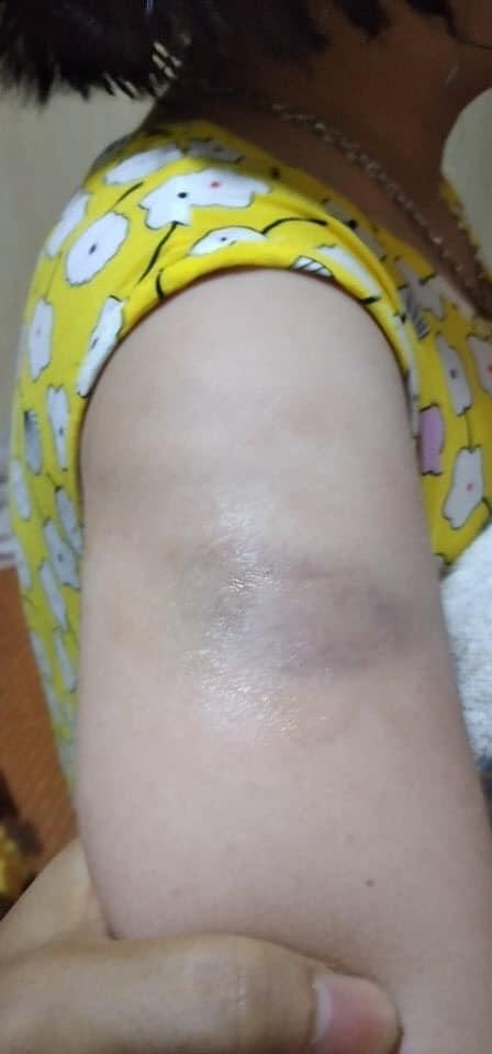 Thêm 1 vụ giáo viên bạo hành học sinh, phụ huynh bức xúc tố: Cháu bị cô đánh bầm tay  vì viết bài chậm, sợ quá không dám kể với ai!-2