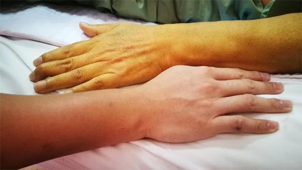 Màu da thay đổi hé lộ nhiều bệnh nguy hiểm-1