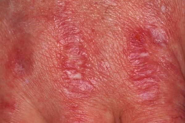 Màu da thay đổi hé lộ nhiều bệnh nguy hiểm-4