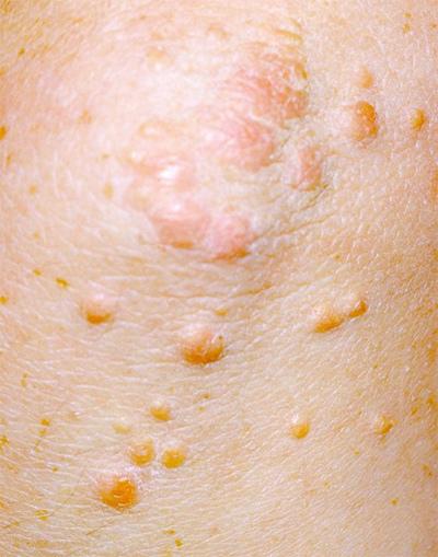 Màu da thay đổi hé lộ nhiều bệnh nguy hiểm-5