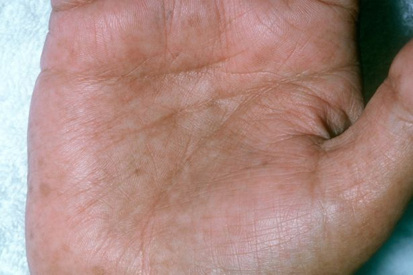 Màu da thay đổi hé lộ nhiều bệnh nguy hiểm-6