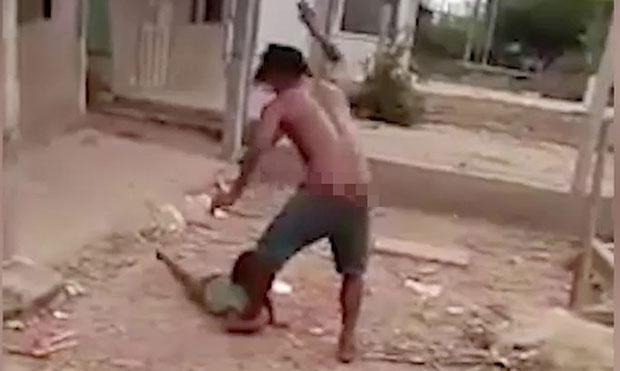 Diễn biến sức khỏe bé gái 6 tuổi bị cha đánh, giẫm đạp dã man-3
