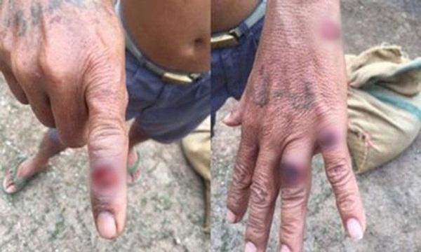 Gây hoại tử, chảy mủ trên da vẫn chưa là gì, bệnh Than còn có 2 thể khác nguy hiểm hơn, sau 1 tuần nhiễm bệnh có thể tử vong-1
