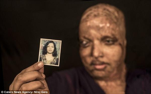 Cô gái trẻ bị tạt axit đến biến dạng khuôn mặt, mù mắt vì từ chối lời cầu hôn, 11 năm sau phép màu kỳ diệu đã xảy ra-1