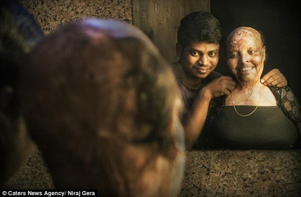 Cô gái trẻ bị tạt axit đến biến dạng khuôn mặt, mù mắt vì từ chối lời cầu hôn, 11 năm sau phép màu kỳ diệu đã xảy ra-2