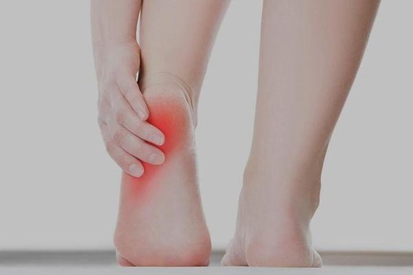 Dấu hiệu ở gót chân cảnh báo bệnh nguy hiểm