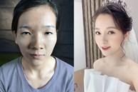 Cô gái dân tộc từng bị miệt thị bởi 'ti hí mắt lươn' sau 3 năm dao kéo đổi đời: Ngày càng xinh đẹp như búp bê, vừa kết hôn với chồng bác sĩ