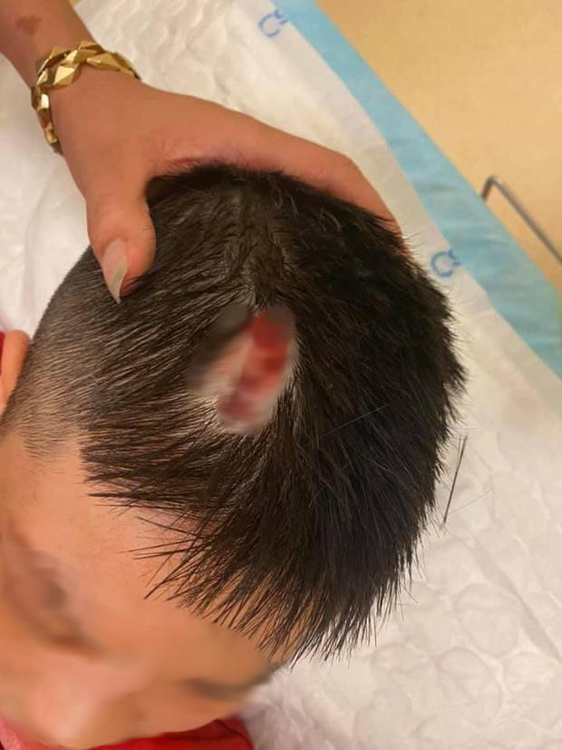 Hà Nội: Chổi lau nhà rơi từ tầng 5 chung cư cao cấp khiến bé trai vỡ đầu phải nhập viện-4