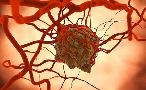 Giám đốc Bệnh viện K: Tế bào ung thư rất khôn, đừng kiêng ăn, hãy làm điều này để chiến thắng bệnh-1