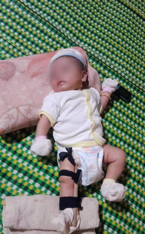 Sự thật vụ bé 2 tháng tuổi nghi bị cha ruột bạo hành tới gãy chân ở Bình Phước-1