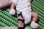 Sự thật vụ bé 2 tháng tuổi nghi bị cha ruột bạo hành tới gãy chân ở Bình Phước