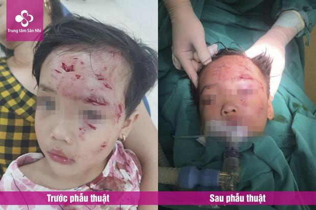 Phú Thọ: Bé gái 3 tuổi bị chó nhà hàng xóm cắn lộ xương trán-1