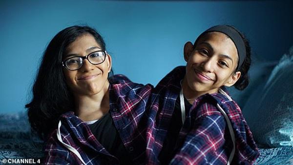 Câu chuyện cặp chị em song sinh với cơ thể dính liền từ chối phẫu thuật tách đôi, nguyện cùng nhau sống trong 1 thân xác-1
