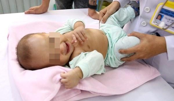 Bác sĩ Cần Thơ kịp thời phát hiện 1 trẻ sơ sinh mắc phải căn bệnh nếu chẩn đoán chậm trẻ sẽ vĩnh viễn bị thiểu năng trí tuệ-1