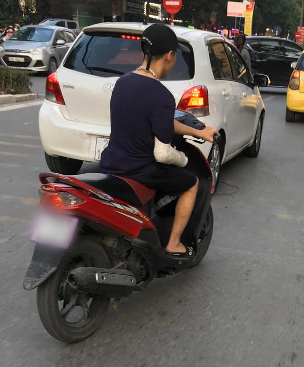 Xôn xao hình ảnh nam thanh niên bị gãy tay phải, vẫn liều mình vặn ga xe máy bằng... tay trái-1