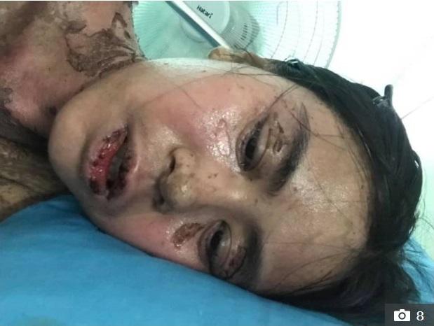 Sốc với hình ảnh cô gái bị dị ứng toàn thân, mặt biến dạng do dùng thuốc chữa đau răng khiến nhiều người thấy sợ-4