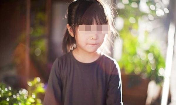 Con gái 5 tuổi liên tục kêu đau ngực, bố mẹ bàng hoàng khi bác sĩ kết luận trẻ dậy thì sớm vì những món đồ vật có sẵn trong nhà-1
