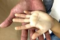 Hình ảnh bàn tay của bé gái uống hơn 10 hộp sữa tươi mỗi ngày khiến ai cũng giật mình