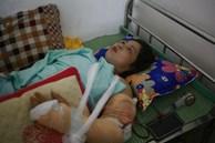 Tình hình sức khỏe của các nạn nhân bị thương trong vụ lốc xoáy ở Vĩnh Phúc: 2 bệnh nhân nặng bị gãy xương đùi, có biểu hiện sốc chấn thương