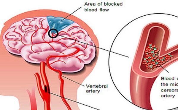 Căn bệnh sát thủ có thể gây suy tim, đột quỵ, suy thận: Nguy hiểm nhưng khó phát hiện-1