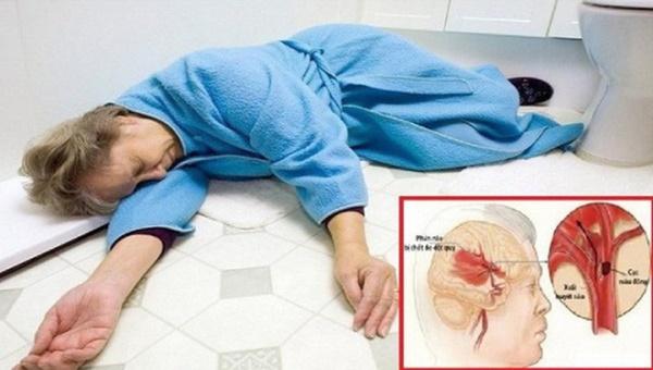 Căn bệnh sát thủ có thể gây suy tim, đột quỵ, suy thận: Nguy hiểm nhưng khó phát hiện-3