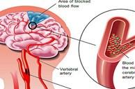 Căn bệnh 'sát thủ' có thể gây suy tim, đột quỵ, suy thận: Nguy hiểm nhưng khó phát hiện