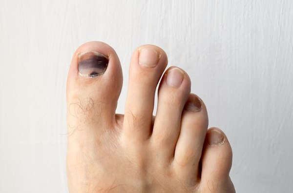 Móng chân chuyển màu đen có thể là nốt ruồi lành tính nhưng nhiều khi cũng là dấu hiệu của các bệnh, bao gồm cả ung thư-1