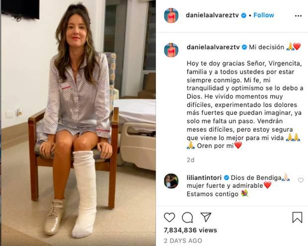 Xót xa nụ cười lạc quan cùng hình ảnh sắc vóc đỉnh cao của Hoa hậu Colombia bị cưa chân trái vì biến chứng phẫu thuật-2