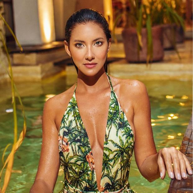 Xót xa nụ cười lạc quan cùng hình ảnh sắc vóc đỉnh cao của Hoa hậu Colombia bị cưa chân trái vì biến chứng phẫu thuật-8
