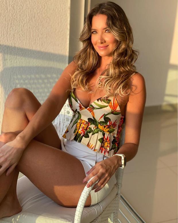 Xót xa nụ cười lạc quan cùng hình ảnh sắc vóc đỉnh cao của Hoa hậu Colombia bị cưa chân trái vì biến chứng phẫu thuật-9