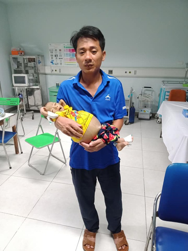 Bức thư đẫm nước mắt của người cha là giáo viên gửi con trai 9 tháng tuổi, cái bụng chực nổ tung vì căn bệnh hiểm nghèo-3