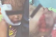 Thương tâm: Đang ăn xúc xích, cháu bé 17 tháng tuổi bị chó hàng xóm ngoạm nát mặt