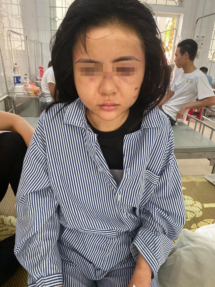 Vụ gã đàn ông xăm trổ tra tấn cô gái suốt 2 tiếng đồng hồ trong nhà: Công an lên tiếng-2