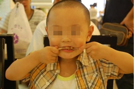 Bé trai 5 tuổi bị hoại tử ruột sau bữa ăn, bác sĩ cảnh báo 3 món ăn