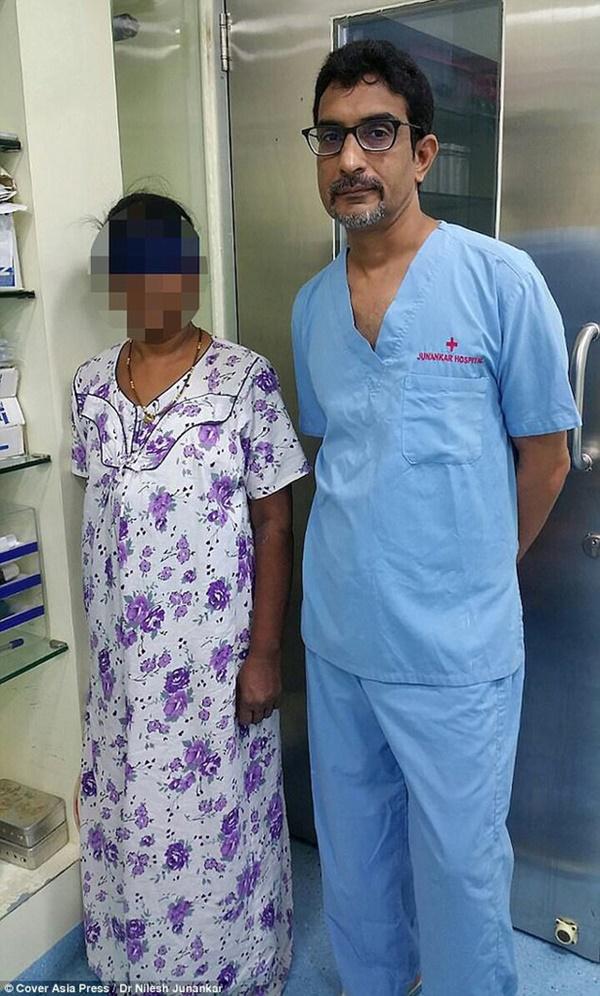 15 năm sau khi phá thai, bà mẹ choáng váng khi phát hiện con vẫn còn trong bụng và hiện tượng bào thai hóa đá hiếm gặp-1