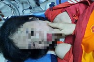 Điều tra vụ người phụ nữ nghi bị chồng hờ bạo hành dã man
