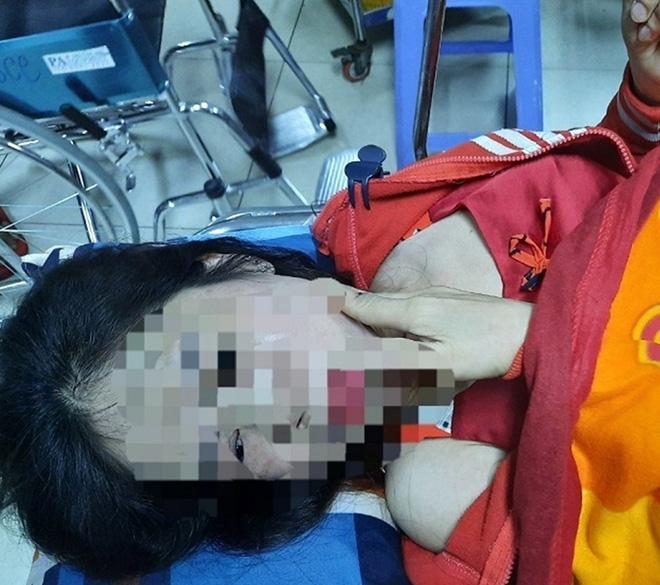Điều tra vụ người phụ nữ nghi bị chồng hờ bạo hành dã man-1