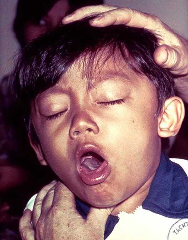 Liên tiếp xuất hiện các ổ bệnh bạch hầu tại Việt Nam: Đây là lý do bạch hầu có thể lây mạnh và vô cùng nguy hiểm cho tính mạng người bệnh-3